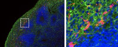 SARS-CoV-2 Can Infect Human Brain Organoids