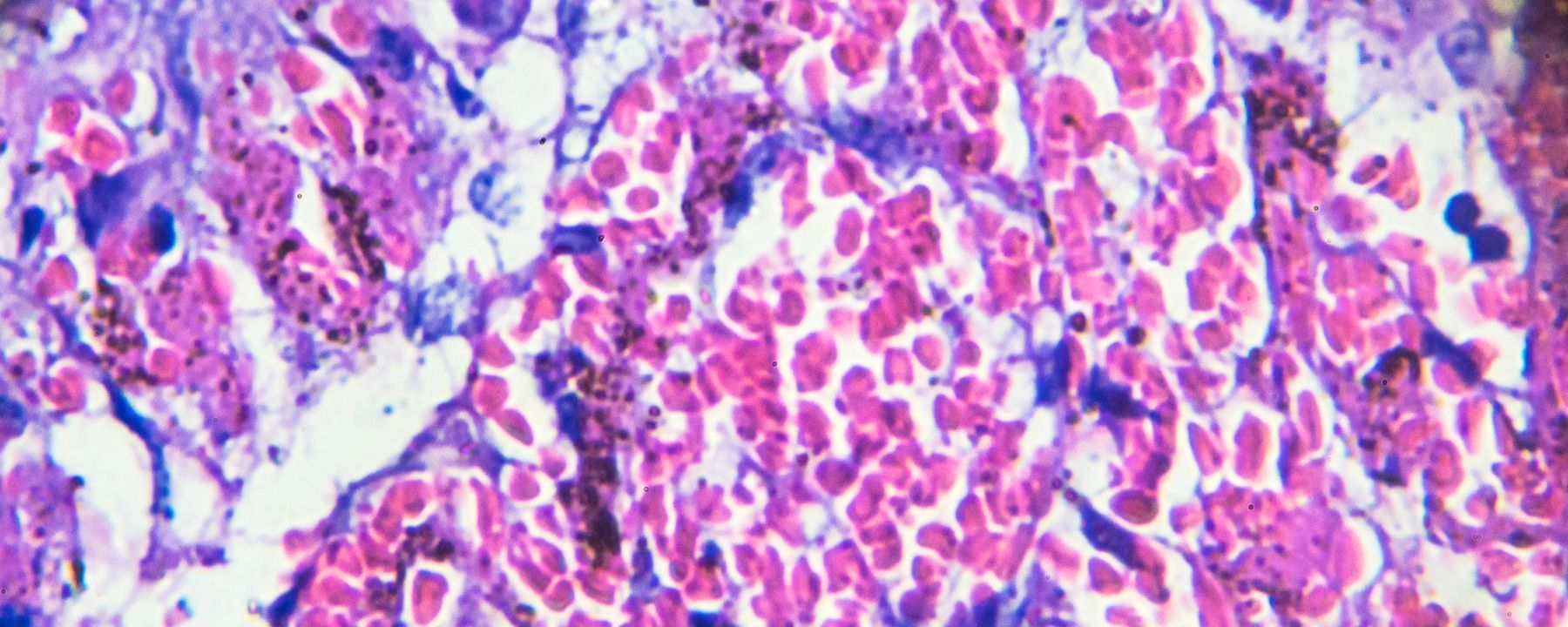 Autopsies Indicate Blood Clots Are Lethal in COVID-19