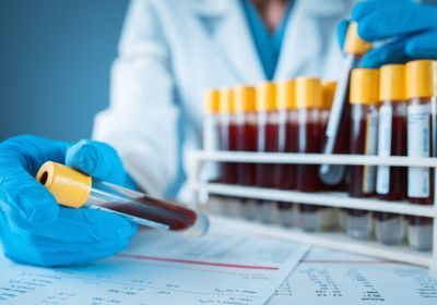 Immune Biomarkers Tied to Severe COVID-19: Study