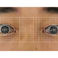 Algorithm Spots COVID-19 Cases from Eye Images: Preprint