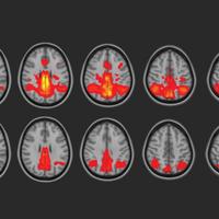 Non-Concussive Head Hits Influence the Brain's Microstructure