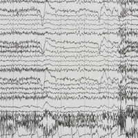 Clues to the Origin and Function of the Brain's Alpha Waves