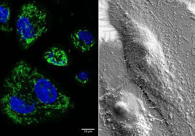 干酪防腐剂减缓口腔癌在小鼠中的扩散:研究