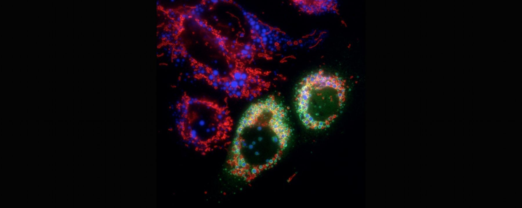 Lipid Droplets Are Intracellular Bacteria-Fighting Machines