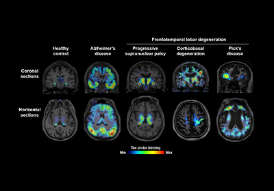 New Tracer Gives Clear Picture of Alzheimer's and Other Dementias