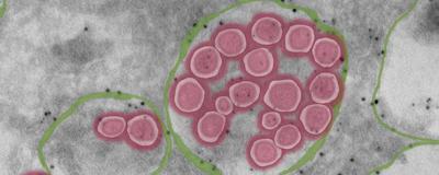 SARS-CoV-2 Exits Cells Via Lysosomes