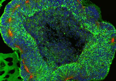 New Screening Approach Reveals Novel Regulators of Microcephaly