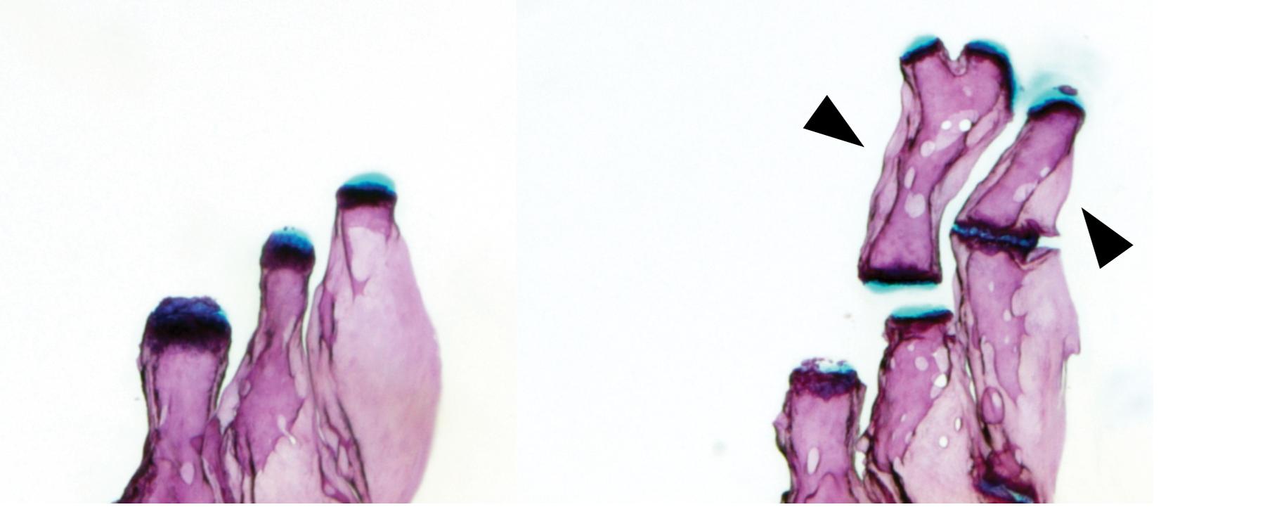 A Simple Genetic Change Adds Limb-Like Bones to Zebrafish Fins