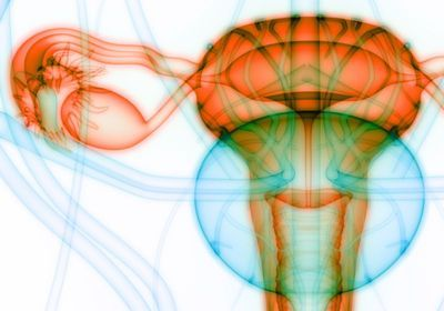 Polycystic Ovary Syndrome May Be Inherited Epigenetically
