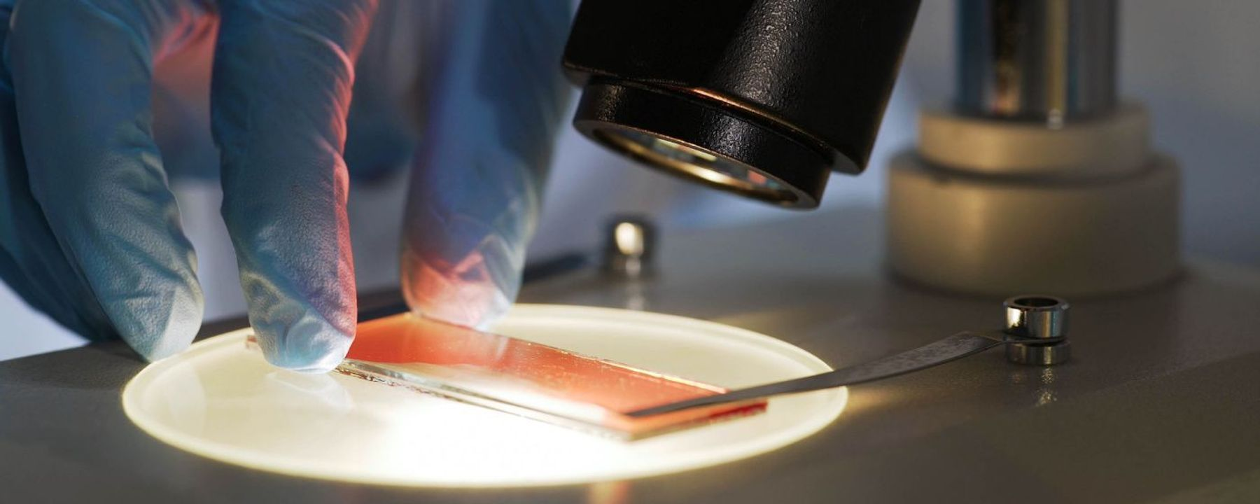 COVID-19 More Deadly with Blood than Solid Cancer: Study