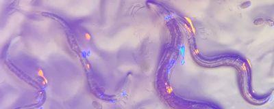 Eyeless <em>C. elegans</em> Perceives Colors: Study
