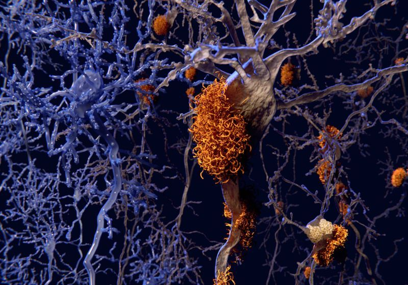 Eli Lilly Claims New Drug Can Slow Alzheimer's-Related Decline