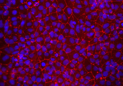 Sex of Human Cells Matters in Studying Neurological Disease