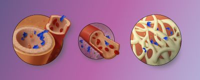 Infographic: Steps in Cancer Metastasis