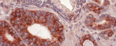 """""""Rogue"""" Protein Could Contribute to Humans' High Cancer Rates"""