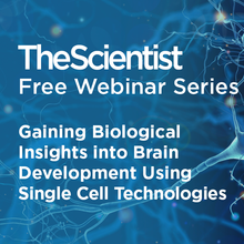 Gaining Biological Insights into Brain Development Using Single Cell Technologies