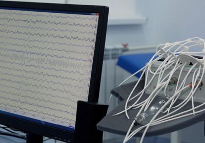 Seizures Common in Hospitalized COVID-19 Patients