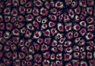 NIH Reverses Limits on Human Fetal Tissue Research