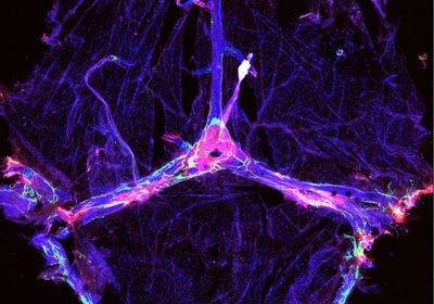 Brain's Lymphatic System Tied to Alzheimer's Symptoms in Mice