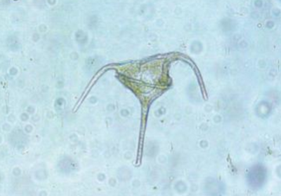 Dinoflagellate Genome Structure Unlike Any Other Known