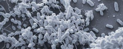 细菌纳米管是怎么回事?
