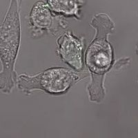 Engineered Immune Cells Eliminate Brain Cancer in Mice