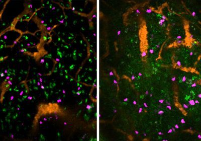 Stress Paralyzes Immune Cells