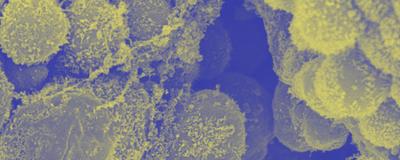 Microbes in Human Fetuses Spur Immune Development