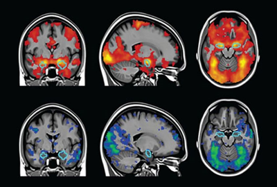 How Scientists Are Tackling Brain Imaging's Replication Problem