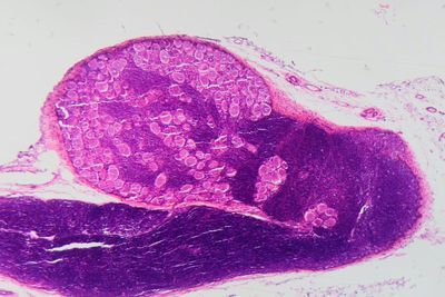 Mouse Study Suggests Fibromyalgia Has Autoimmune Roots