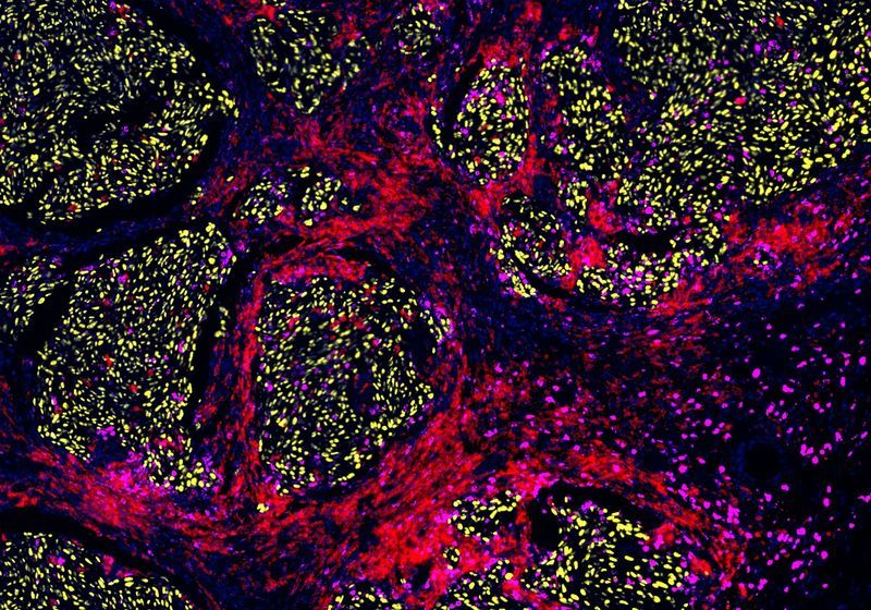 Cross-Resistance: One Cancer Therapy Can Undermine the Next