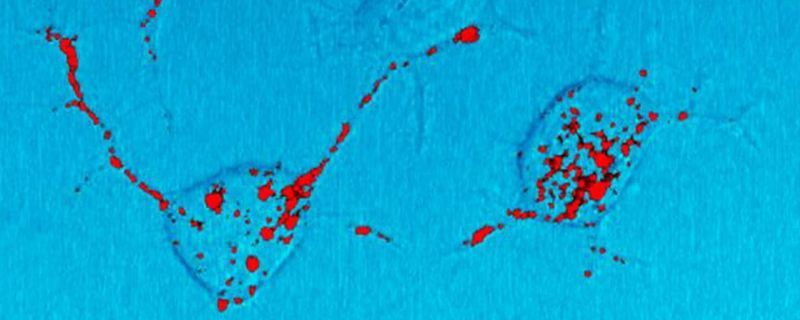 Citing Safety, French Institutions Temporarily Halt Prion Research