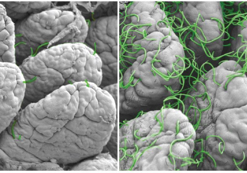 Gut Microbes Help Coordinate Immune Activity in Mice