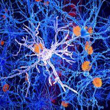 Understanding Microglial Response in Alzheimer's Disease