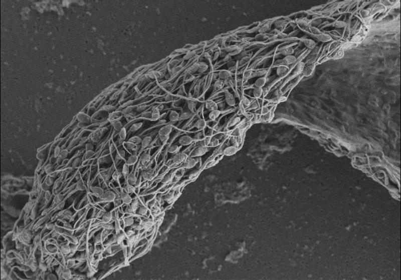 Antibodies Stop Sperm in Their Tracks