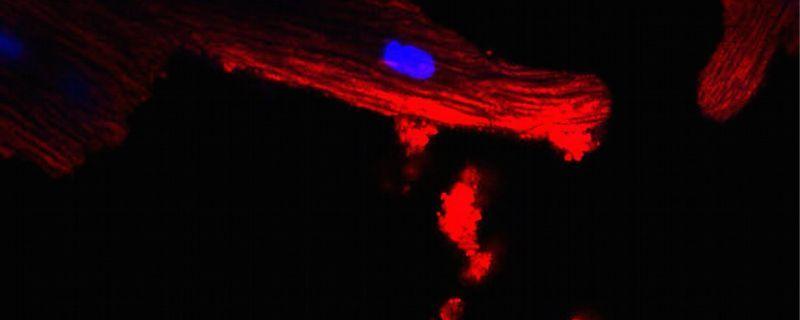 Fat Cells Send Mitochondrial Distress Signals to the Heart