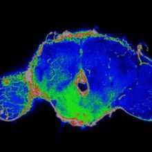 Tumors Disrupt the Blood-Brain Barrier at a Distance