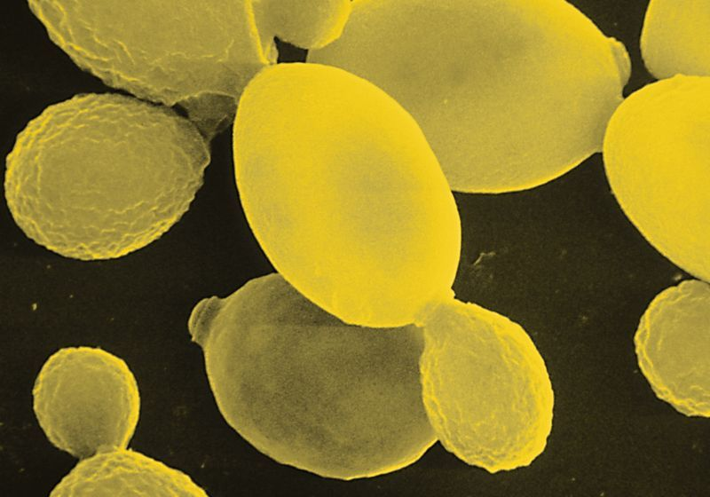 Yeast Models Provide New Insights into Neurodegenerative Diseases