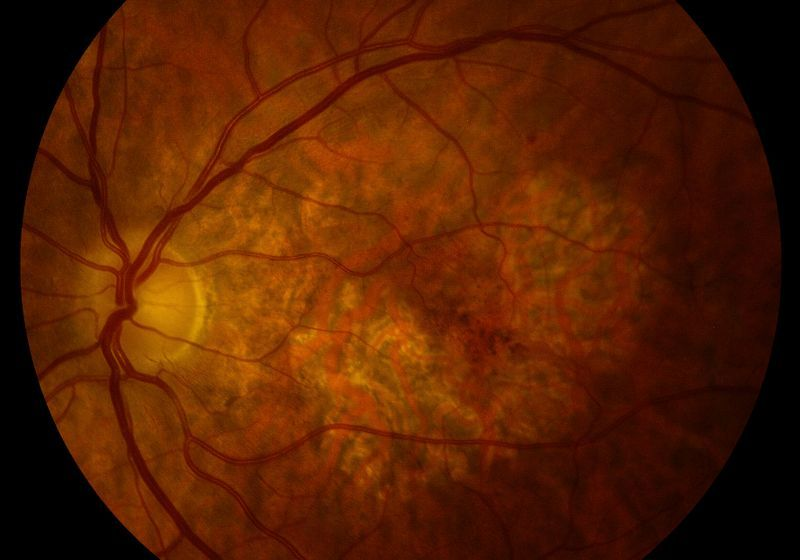 close-up of a retina showing blood vessels and a damaged spot