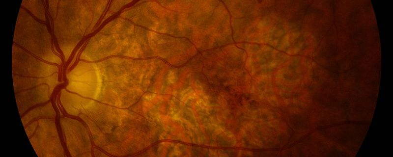 DNA in Cell Cytoplasm Implicated in Age-Related Blindness