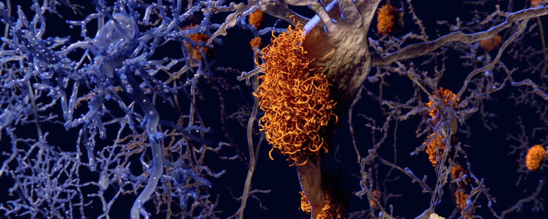 Alzheimer's Risk Gene Paradoxically Protects Against Memory Loss