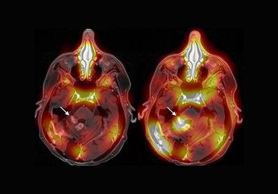 brain scan showing uptake of tratuzumab into tumor (arrow)