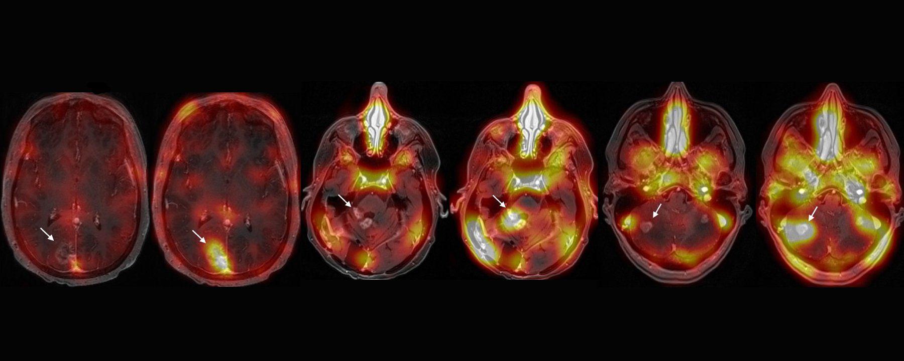 Sound Waves Aid Brain Tumor Treatment