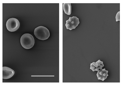 Red blood cells are pictured in grayscale on a gray background
