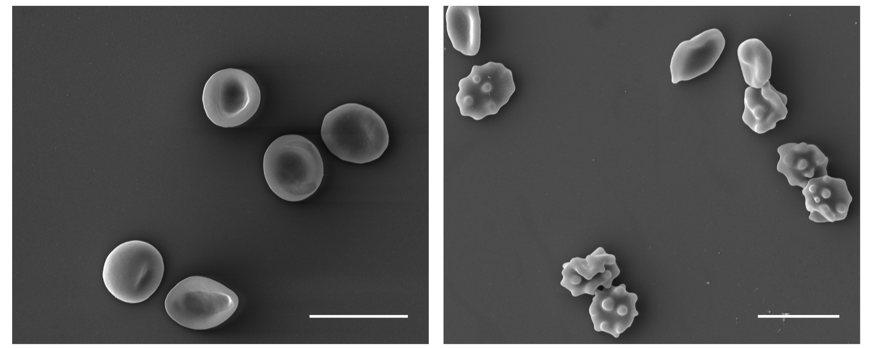 Red Blood Cells Activate Innate Immune System